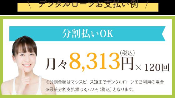 分割払いOK 月々15,200円×60回 ※ホワイトワイヤー矯正を分割払いにした場合の費用例