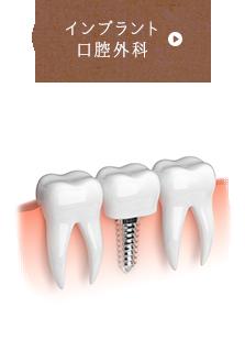 インプラント 口腔外科