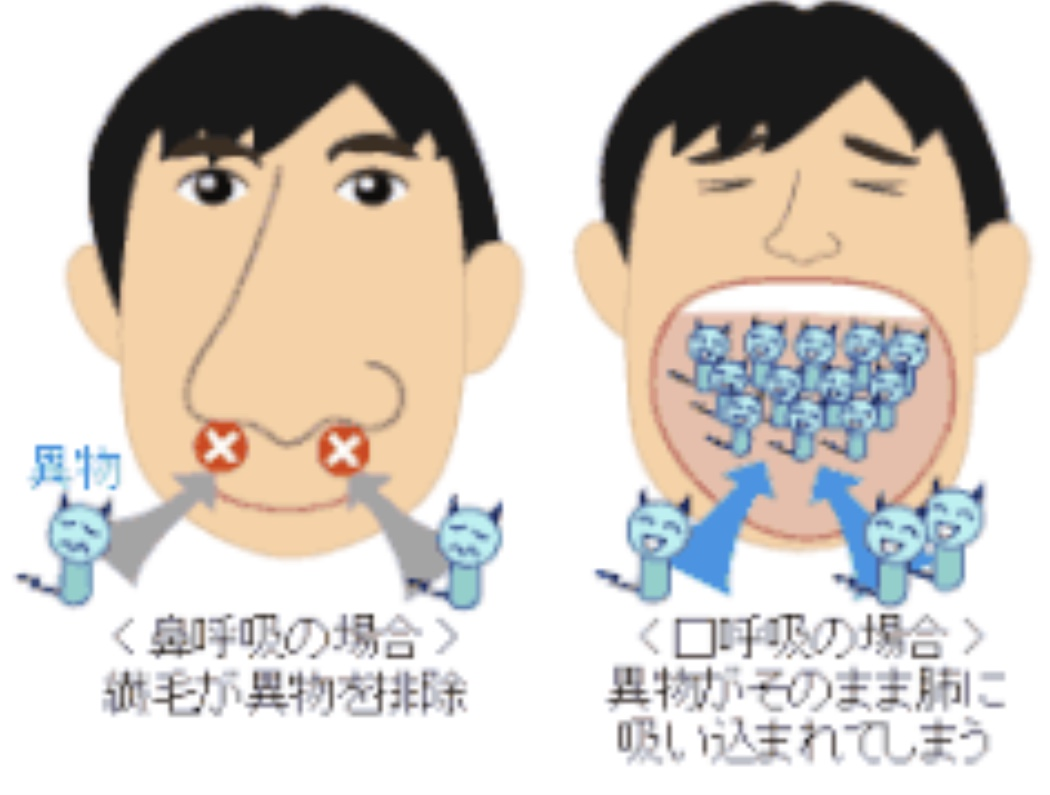 口呼吸のリスクと予防 | 一宮市で歯医者なら長坂歯科・矯正歯科へ